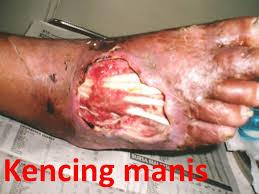 Penyakit Kencing Manis